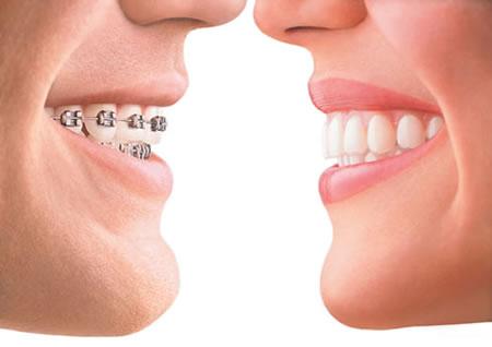 Διαφανείς νάρθηκες! Ξεχάστε πλέον τα κλασικά σιδεράκια στα δόντια!