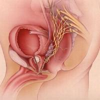όγκοι της ουροδόχου κύστης