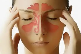 Οξεία ρινίτιδα- δείτε πώς προκαλείται και πώς θεραπεύεται!