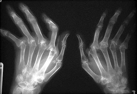 Ρευματοειδής-αρθρίτιδα-δείτε πώς αντιμετωπίζεται!