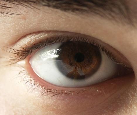 Ιριδοκυκλίτιδα-δείτε πώς αντιμετωπίζεται