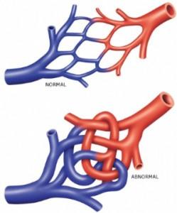 Αρτηριοφλεβώδεις δυσπλασίες του νωτιαίου μυελού
