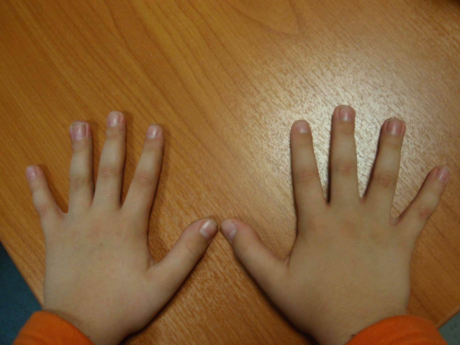 Νεανική-ρευματοειδής-αρθρίτιδα-δείτε πώς αντιμετωπίζεται