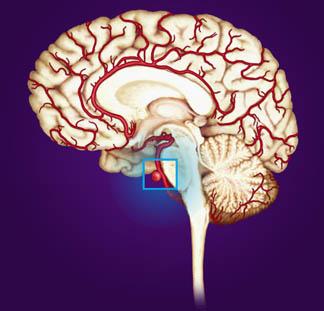 Ανεύρυσμα-εγκεφάλου-δείτε πώς αντιμετωπίζεται!