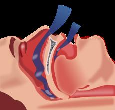 Αποφρακτική-άπνοια-ύπνου-δείτε πώς αντιμετωπίζεται