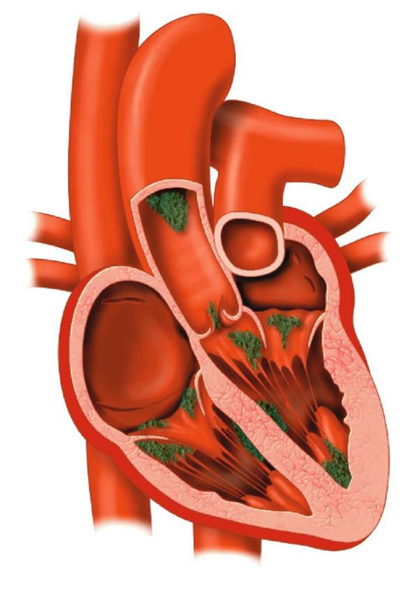 Μυοκαρδίτιδα:δείτε πως αντιμετωπίζεται