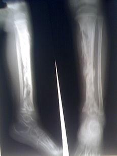 Οστεομυελίτιδα-δείτε πώς αντιμετωπίζεται!