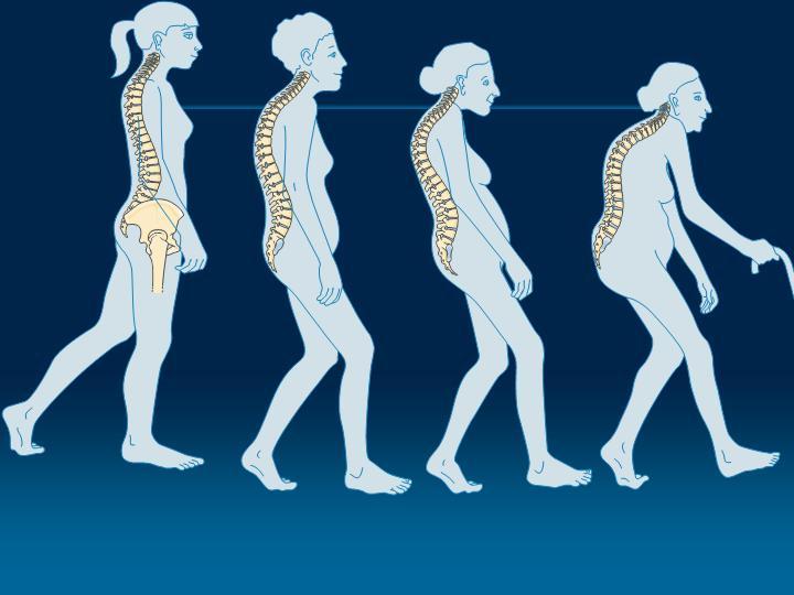 Οστεοπόρωση-δείτε πώς αντιμετωπίζεται!