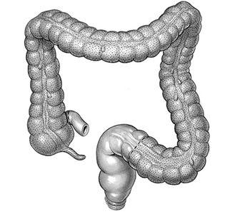 Οξεία-σκωληκοειδίτιδα-δείτε πώς αντιμετωπίζεται