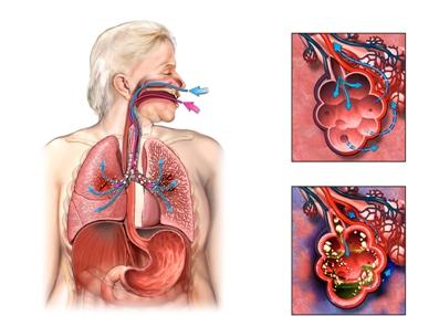 Πνευμονία-δείτε πώς αντιμετωπίζεται!