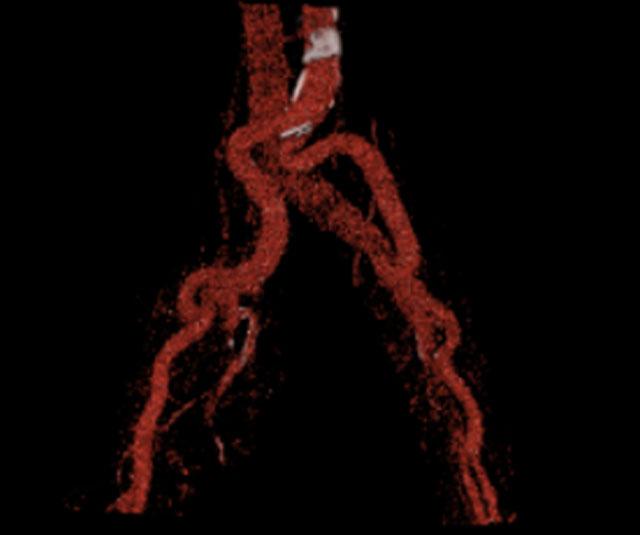 Θρομβοφλεβίτιδα-δείτε πώς αντιμετωπίζεται