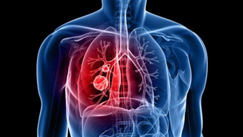 Βρογχικό-άσθμα-δείτε πώς αντιμετωπίζεται