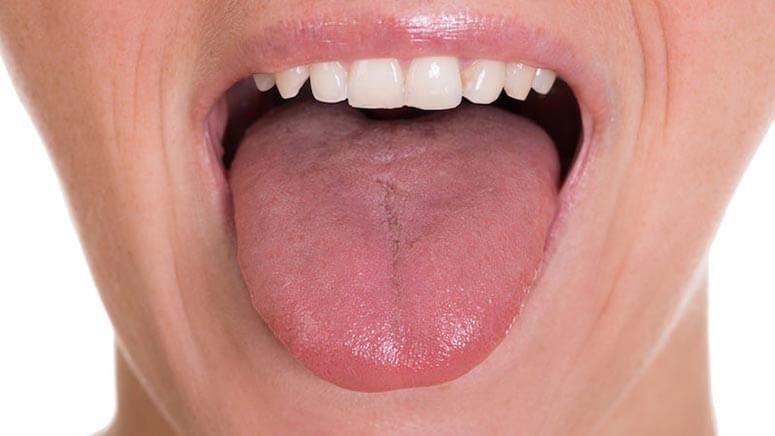 okseia epiglossitida