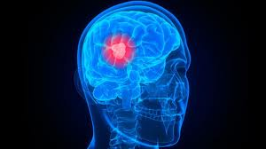 Καρκίνος-εγκεφάλου-δείτε πώς αντιμετωπίζεται!