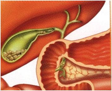 Χοληδόχος-κύστη- αίτια, συμπτώματα, θεραπεία