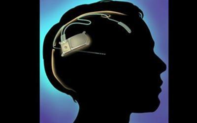 Ηλεκτροσπασμοθεραπεία-δείτε πώς αντιμετωπίζεται