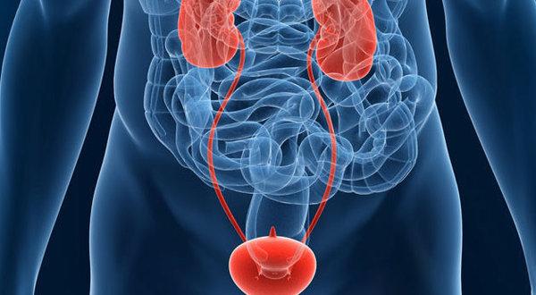 Καρκίνος-ουροδόχου-κύστης-δείτε πώς αντιμετωπίζεται