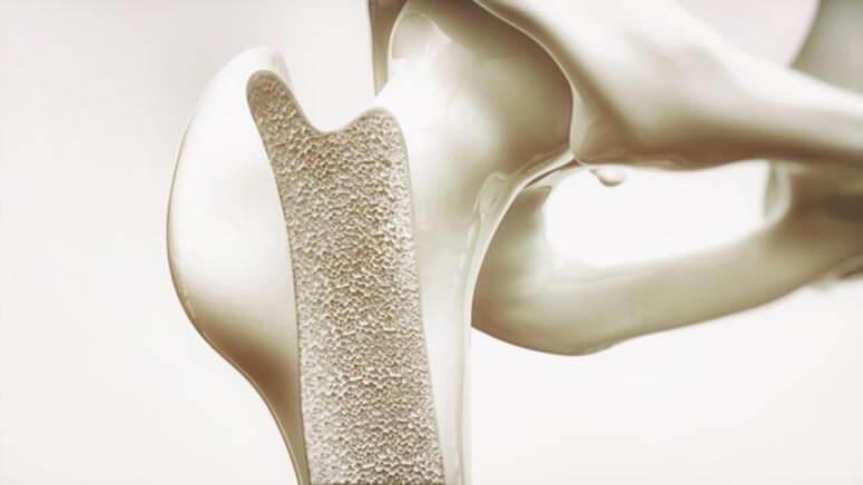 osteoporwsi