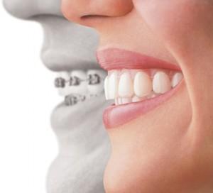 Η σύγχρονη οδοντιατρική προσφέρει λύσεις για τα σιδεράκια