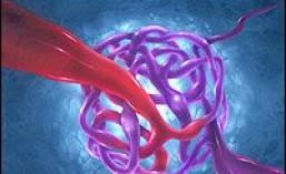 Αρτηριοφλεβικές-δυσπλασίες-δείτε πώς αντιμετωπίζεται