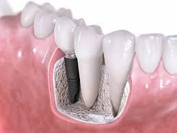 Οδοντικά εμφυτεύματα και η φροντίδα που χρειάζονται