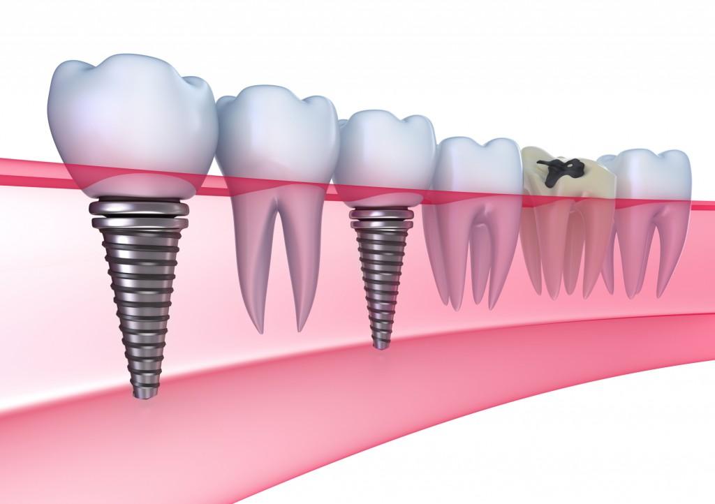Οδοντικά εμφυτεύματα: πότε και πώς γίνεται η επέμβαση