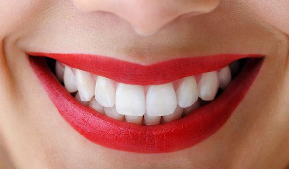 Αισθητική οδοντιατρική: μάθε πώς να αποκτήσεις ένα λαμπερό χαμόγελο