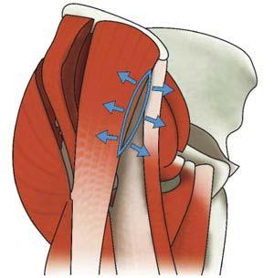 Αντιμετώπιση της οστεοαρθρίτιδας με ολική αρθροπλαστική ισχίου - Η μέθοδος AMIS