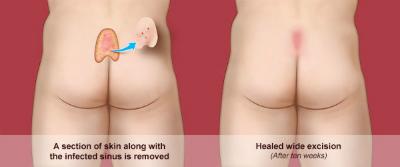 Δώστε τέλος στην κύστη κόκκυγα με την νέα ενδοσκοπική θεραπεία με Laser Filac