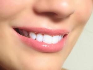 Λεύκανση Δοντιών - Απαντούμε στις συχνότερες ερωτήσεις που γίνονται στο ιατρείο