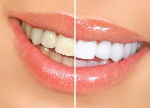 Λίγα πράγματα για την λεύκανση των δοντιών