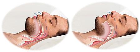 Σύνδρομο άπνοιας ύπνου: ποια είναι τα συμπώματα