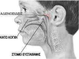 Κρετάκια: η εκκρικτική ωτίτιδα