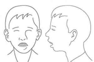 Κρεατάκια: η εκκριτική ωτίτιδα