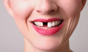 σπασμένα δόντια