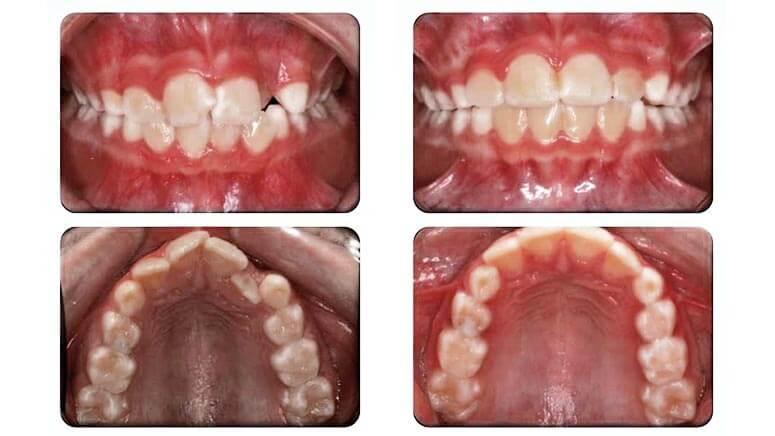 muoleitoutgiki orthodontiki therapeia