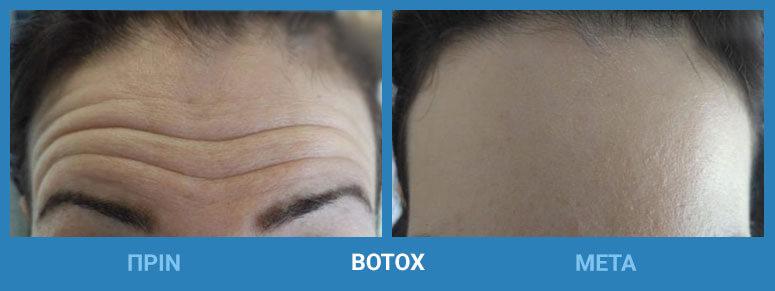 botox prin meta
